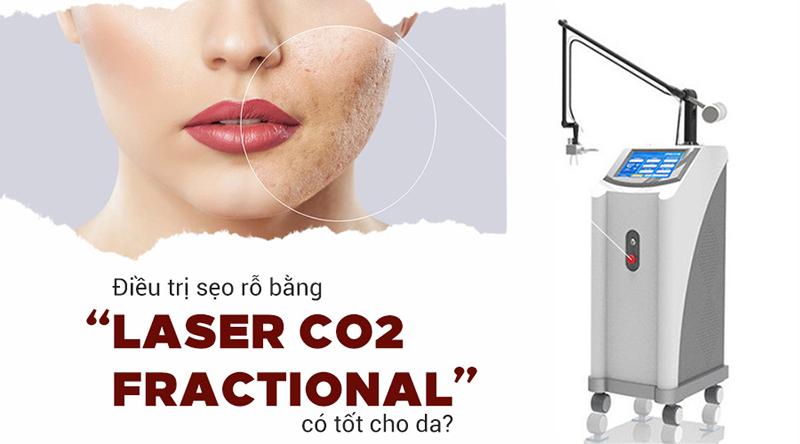 Công nghệ Laser Fractional CO2 điều trị sẹo rỗ hiệu quả